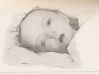 Copil cu meningita TBC