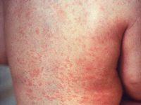 Imunitatea naturala si imunitatea vaccinala