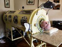 Poliomielita - Plamanul de fier